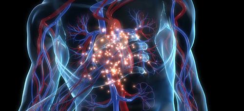 infarto-figura