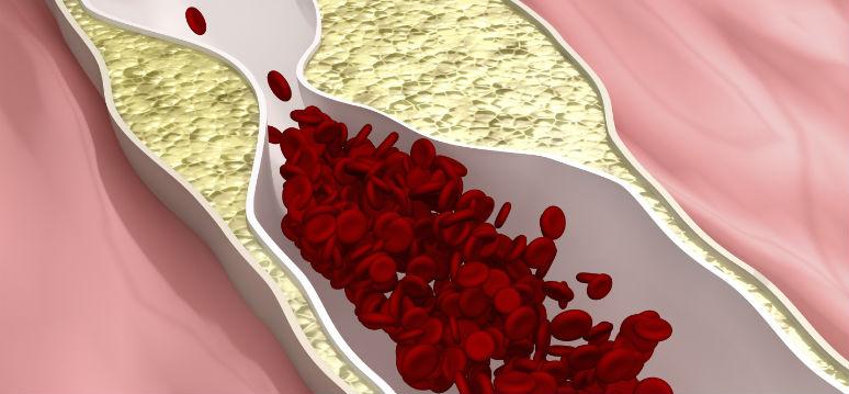 arteriaiStock_000021259794Medium